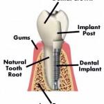 implantatum
